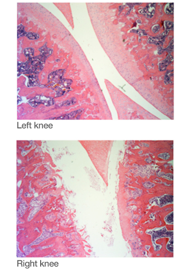 Medial aspect of the rat knee stained with H &E from one individual animal challenged with ETF-PBS (left knee) or Low MIA (right knee) after 6 weeks (4 x magnification)